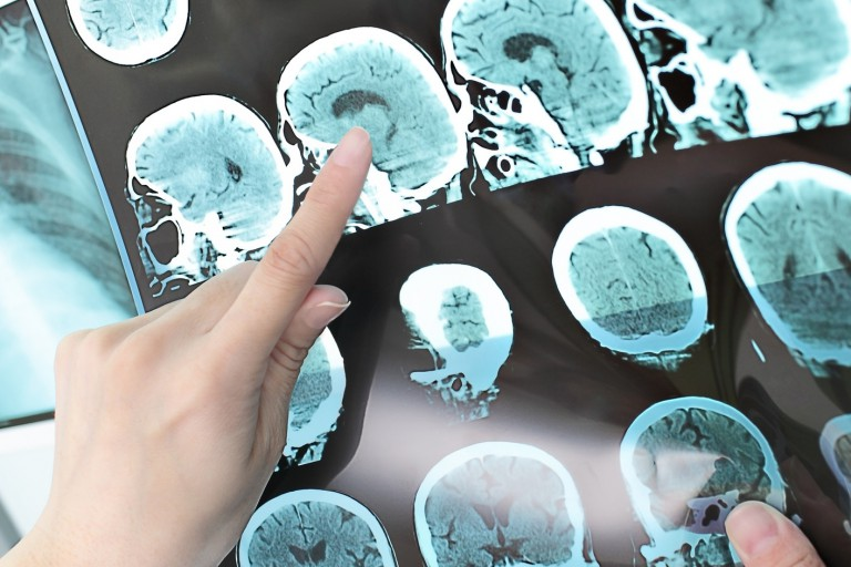 Person pointing at an x-ray of a brain.