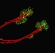 This is an image of Axons of retinal ganglion cells